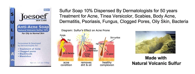 Ulfur Soap Medical Grade Otc Dermatologists Approved 40 Yrs For Acne Acne Sulfur Acne Treatment Acne Vulgaris Treatment