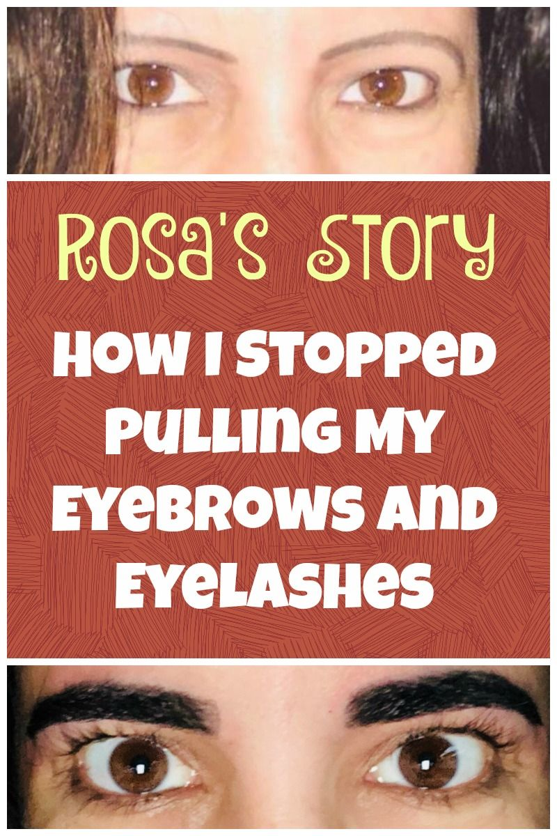How Rosa Successfully Stopped Pulling Out Her Eyelashes And Eyebrows