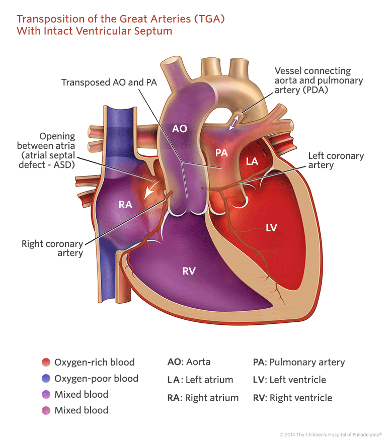Transposition Of The Great Arteries Tga With Intact Ventricular