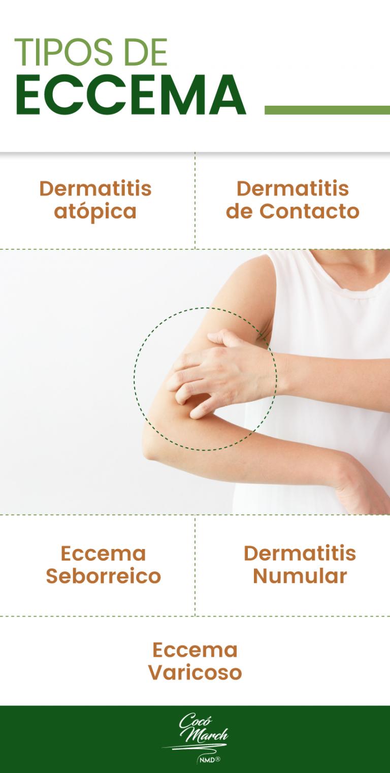 Cómo Eliminar Los Eccemas De Forma Natural Coco March Remedios Para La Soriasis Remedios Caseros Eccema