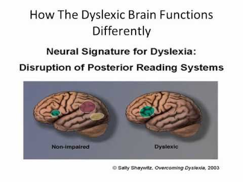 How Science Is Rewiring Dyslexic Brain >> Dyslexia How The Brain Functions A New Solution For Dyslexia