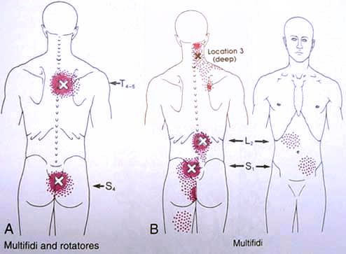 Diagram Of Back Pain Points Electrical Wiring Diagram