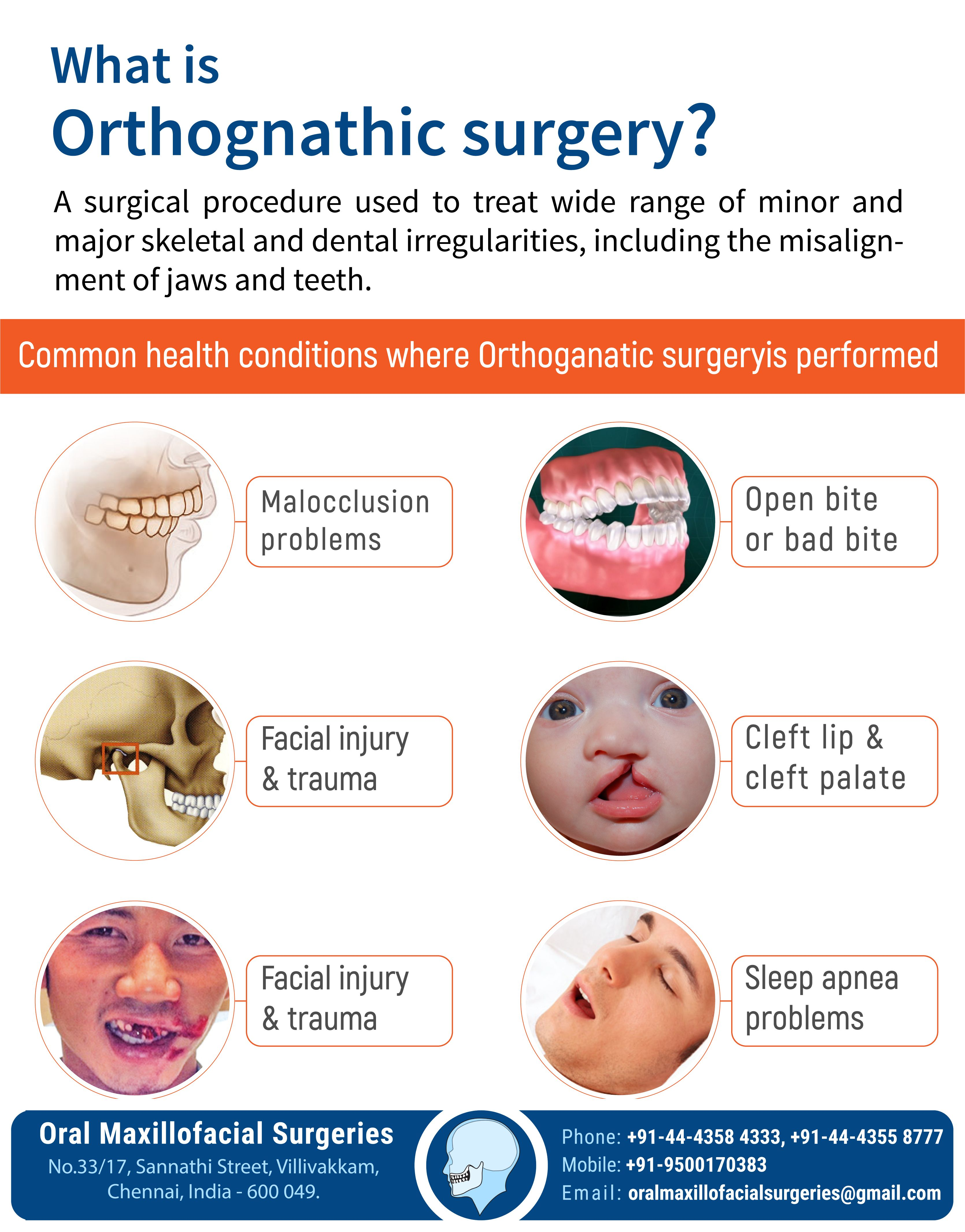 What is Orthognathic Surgery? A Surgical procedure used to treat wide range of minor and major skele