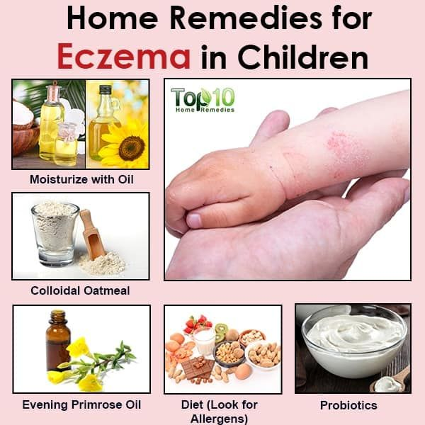 Natural Remedies For Eczema In Children Top 10 Home Remedies Natural Eczema Remedies Eczema Remedies Home Remedies For Eczema