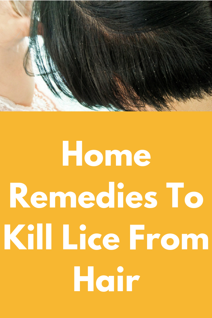 Home Remedies To Kill Lice From Hair  Hair Care  Pinterest