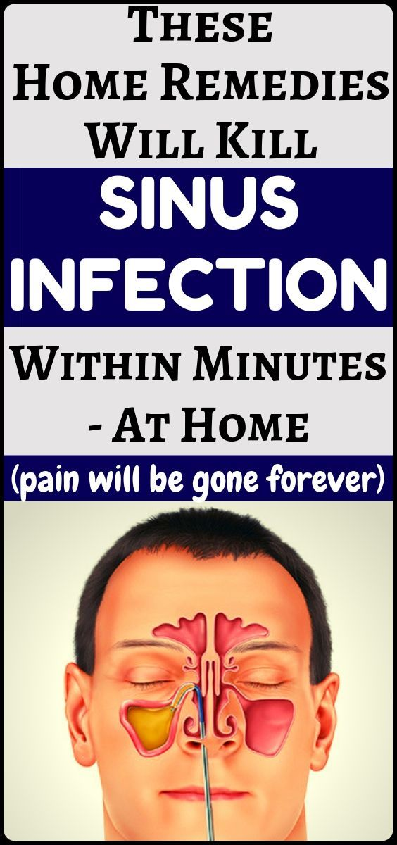 #infection #treatment #secrets #fitness #health #sinus #home #and #atSinus infection treatment at ho...