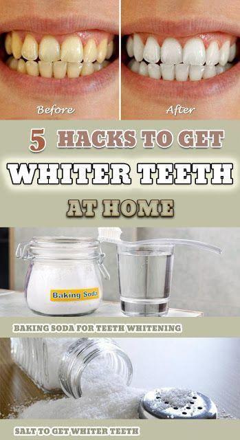 5 Great Hacks to Get Whiter Teeth at Home #health #whiterteeth #homeremedies #teeth #white #diytips #HowToCareForOralHealth