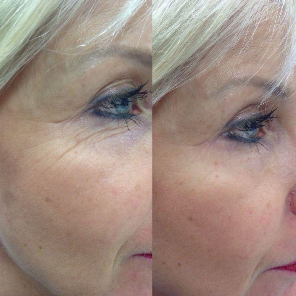 Junger Aussehen In Wenigen Minuten Mit Anti Falten Effektkosmetik Kosmetik Schonere Haut Juchen