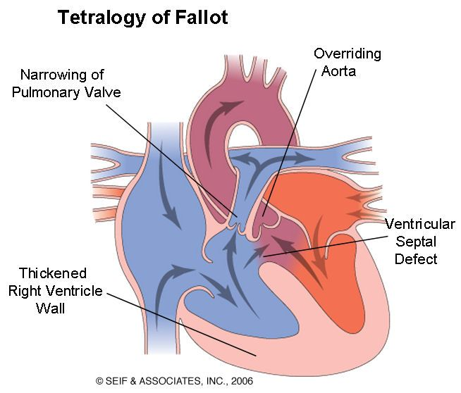 Scott White Central Texas Scott White Tetralogy Heart Conditions
