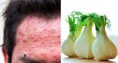 10 aliments pour lutter contre l'acné noté 2.5 - 2 votes L'acné touche aujourd'hui en France près de 15 millions de personnes. Bien que ce soit surtout les adolescents qui soient concernés, 20% de femmes adultes ne sont pas épargnées par ce phénomène. Ce n'est pas parce que le lycée est terminé qu'il en va...