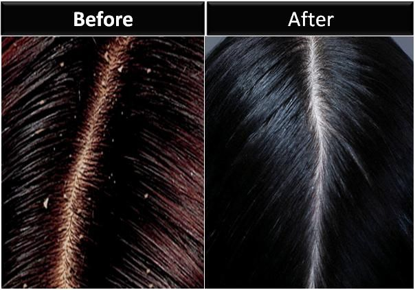How To Get Rid Of A Bad Case Of Dandruff