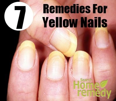 7 Home Remedies For Yellow Nails