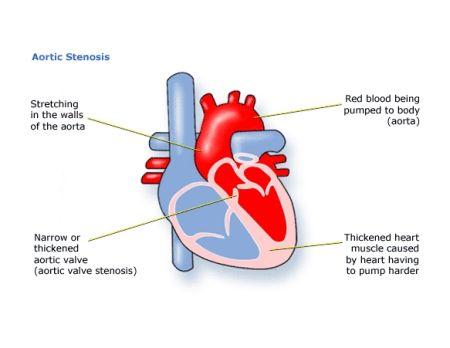 Aortic Stenosis Aortic Stenosis Pedi 2 Pinterest Aortic Stenosis
