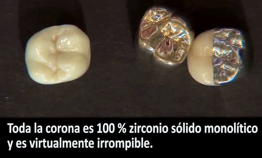 Bruxzir-zirconia