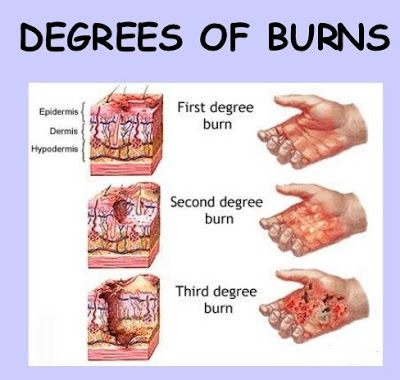 Study Medical Photos A Brief Description Of Burns Burns