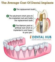 what is the price of dentures