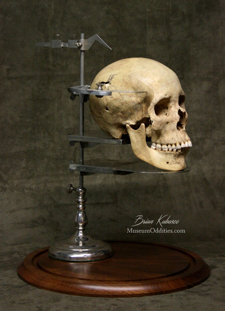 Real human skull displayed on GNATHOSTAT for sale at www
