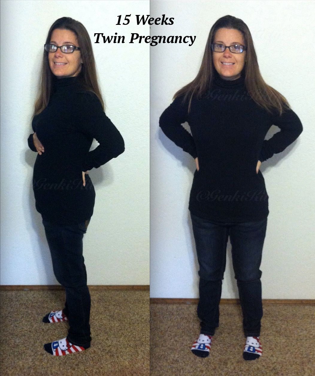 15 Weeks Twin Pregnancy Photo