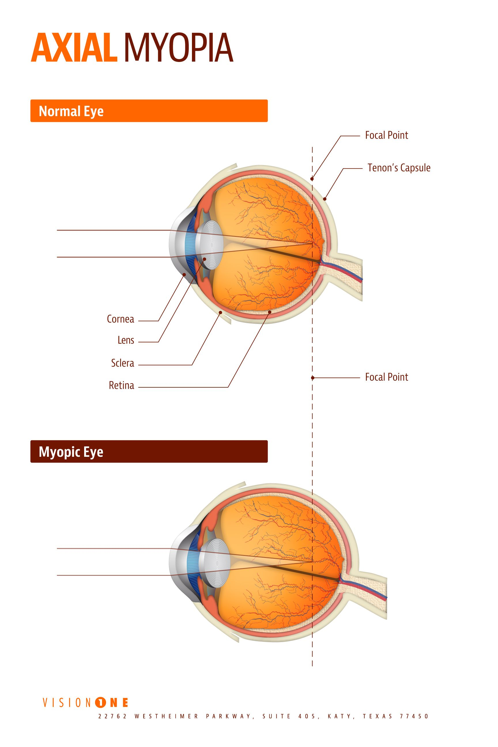medium resolution of image result for high axial myopia