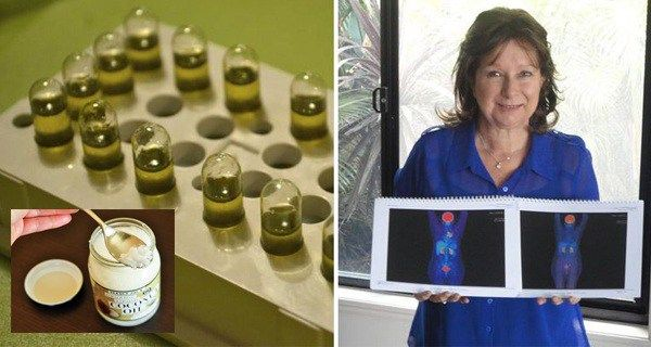 After she was diagnosed with final stage lung cancer and the doctors said it cannot be cured, her daughter found a way to purchase cannabis oil. She decided to help her mother after the oncologist said that she had only six months to live. In 3 months only she succeeded in defeating 4 stage...