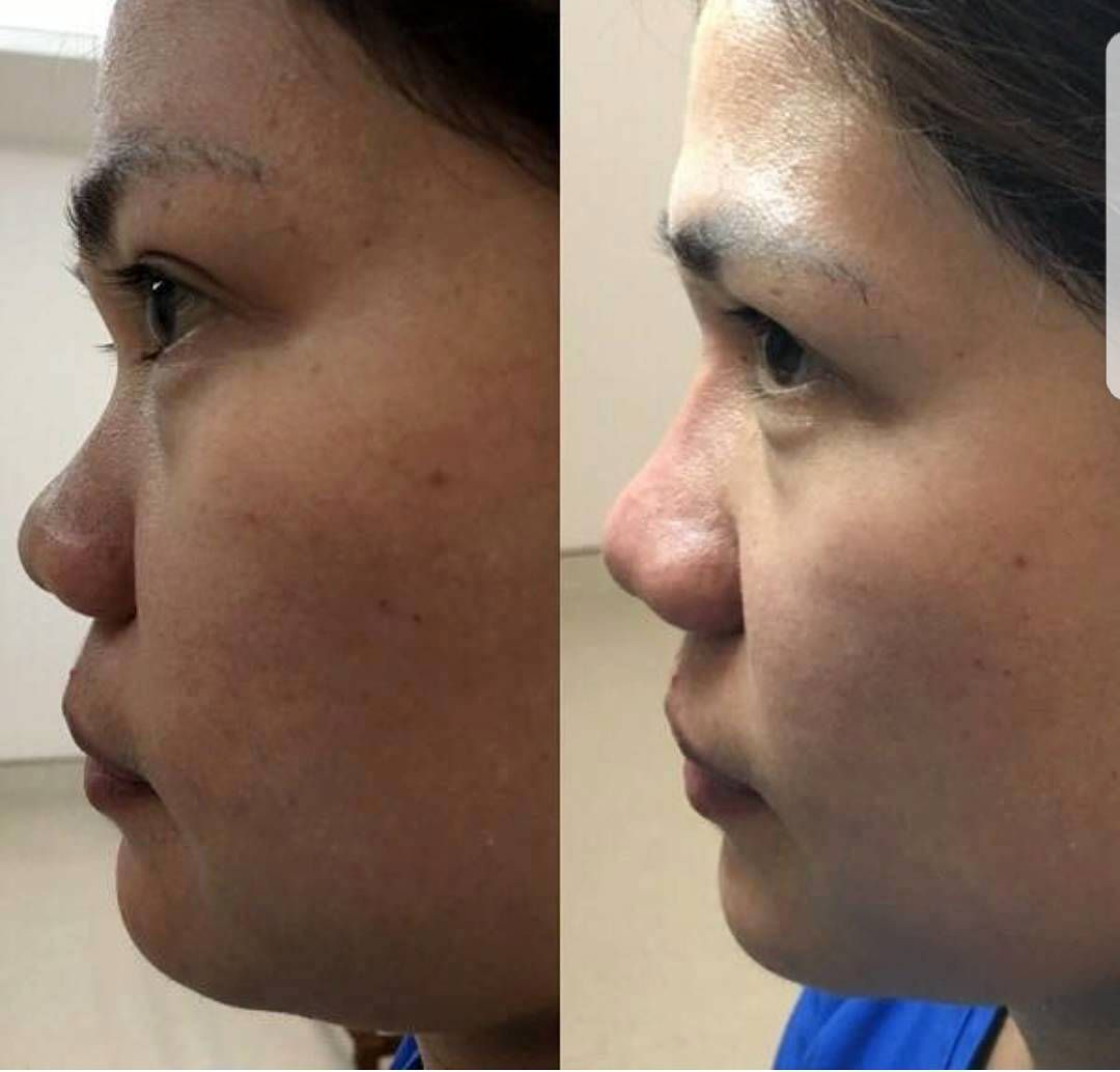 Before And After Of Thermage (14) | Thermage Facelift