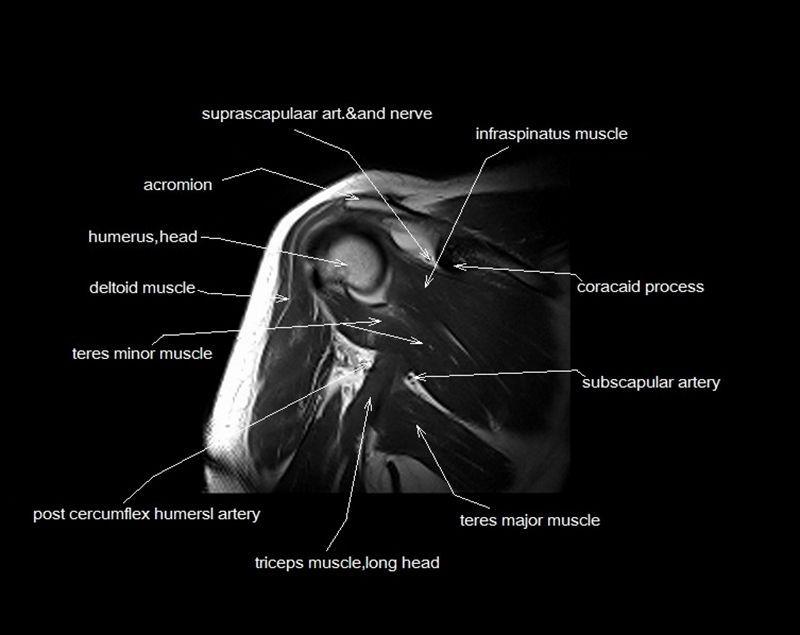 Image result for mri anatomy shoulder   Shoulder   Pinterest   Med ...