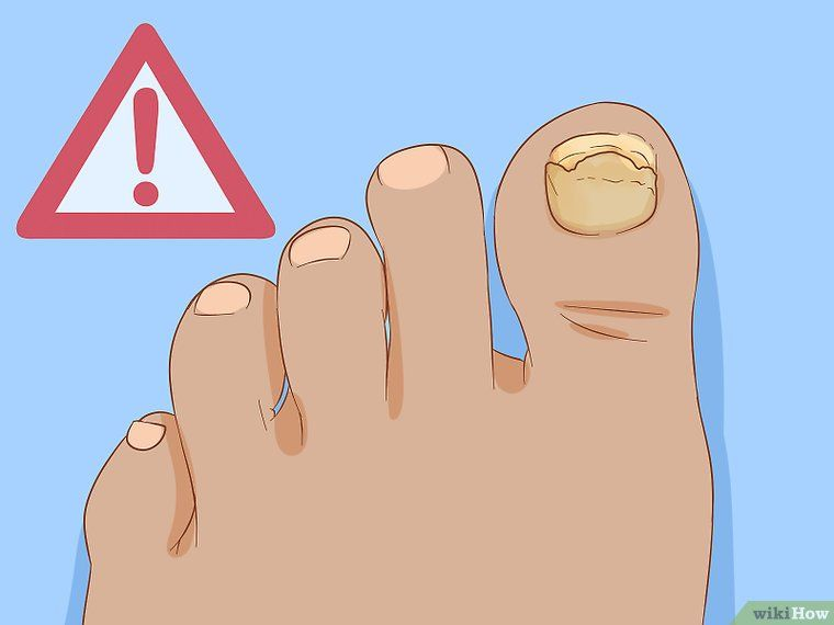 How To Help A Toenail Grow Back Quickly Toe Nails How To Grow Nails Grow Nails Faster