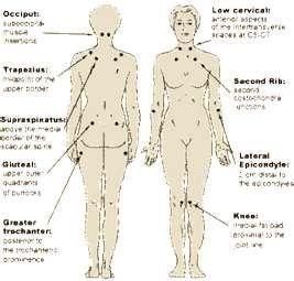 Fibromyalgia Tender Points Exam Chart