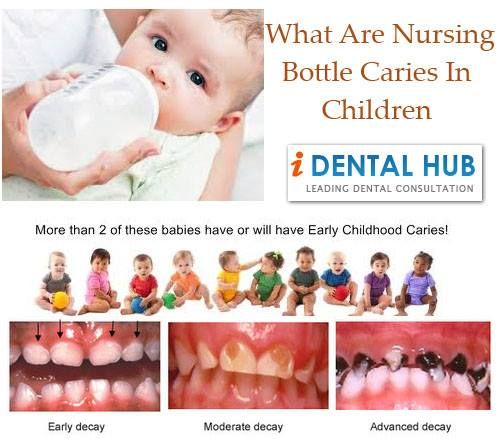 What Are Nursing Bottle Caries In Children What Is Nursing