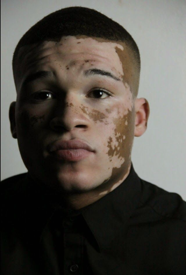 Curtis Mcdaniel Vitiligo Model Draw On Photos Vitiligo