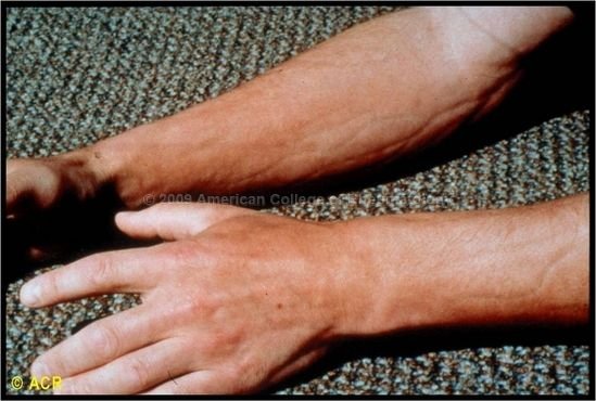 Eosinophilic Fasciitis Groove Sign Forearm Chronic Lyme Disease