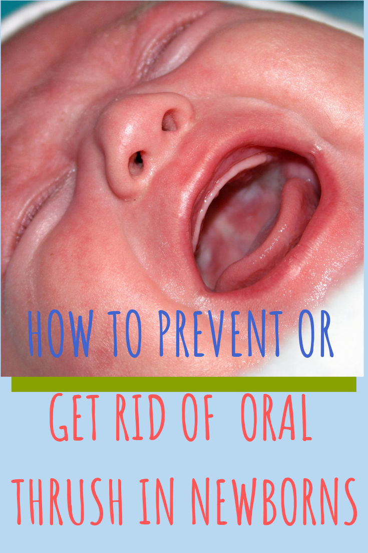 Oral Thrush During Breastfeeding Causes And Symptoms Baby Thrush Oral Thrush Baby Baby Breastfeeding