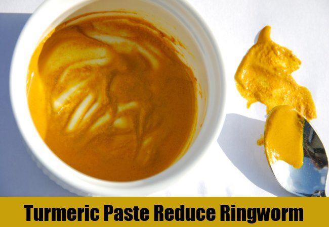 6 Best Home Remedies For Ringworm #homeremediesforringworm
