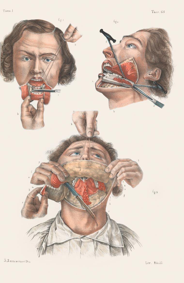 Disturbing Vintage Medical Illustrations That Will Shock You ...