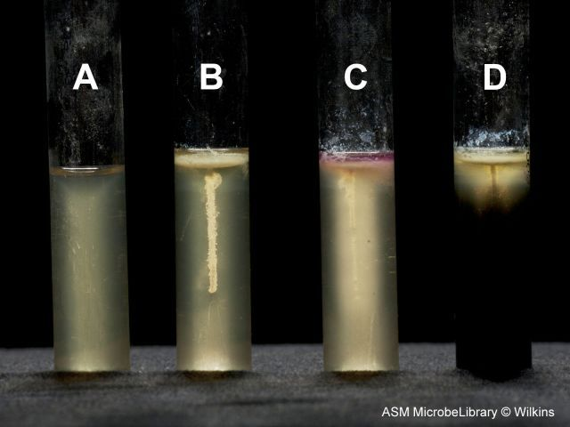 SIM test: (A) uninoculated tube, (B) contains the ...
