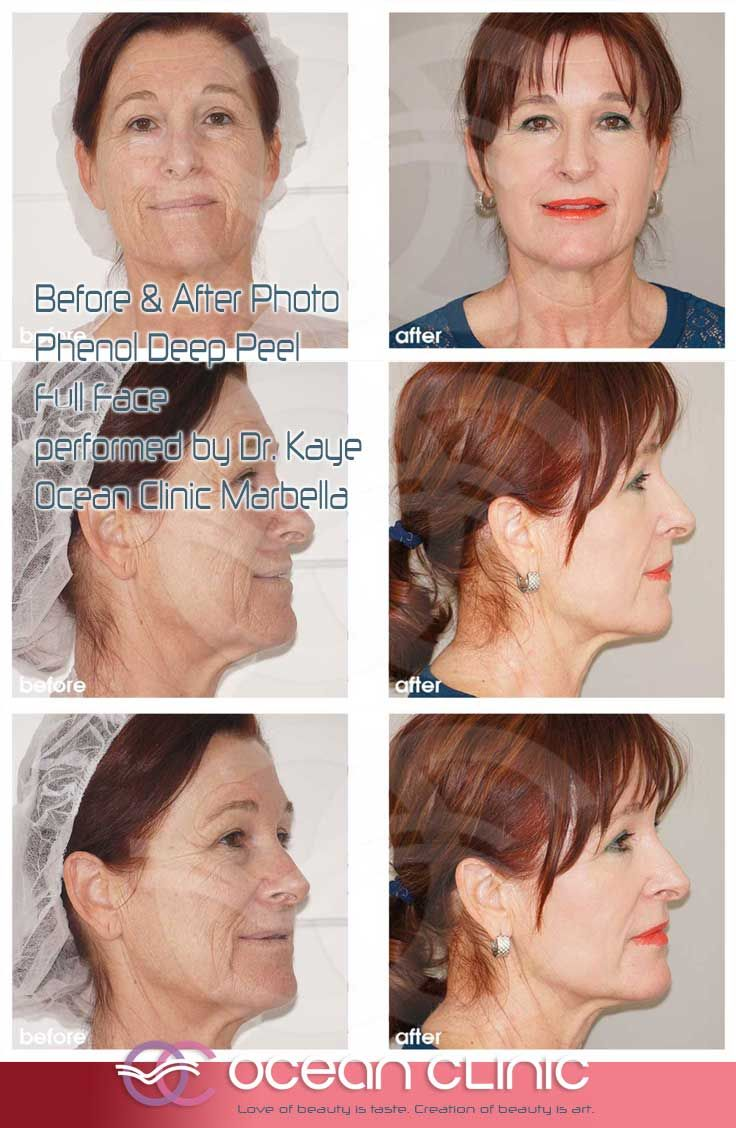 Phenol Deep Peel Full Face Before & After Photos performed