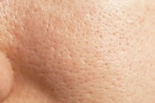how to make pores smaller on hands