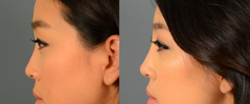 How this asian nose job improves your features in 2020