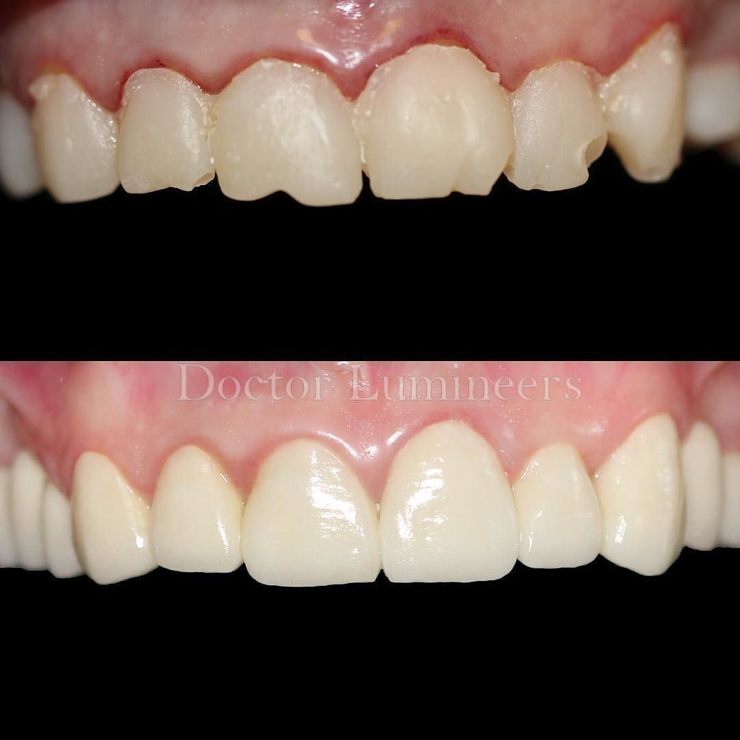 Smelly Dental Crown Molding Teethwhiteningpen