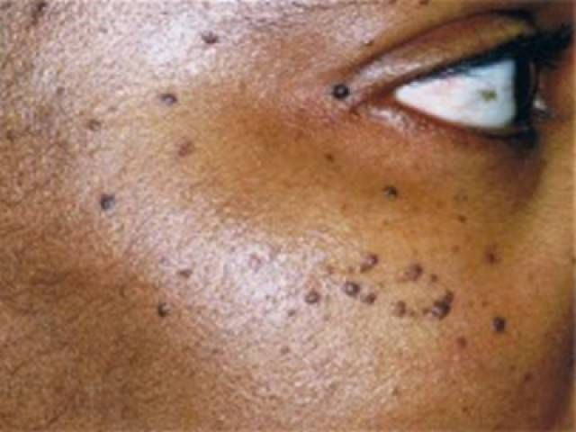 Home Remedies To Remove Warts (Skin tags) (With images ...