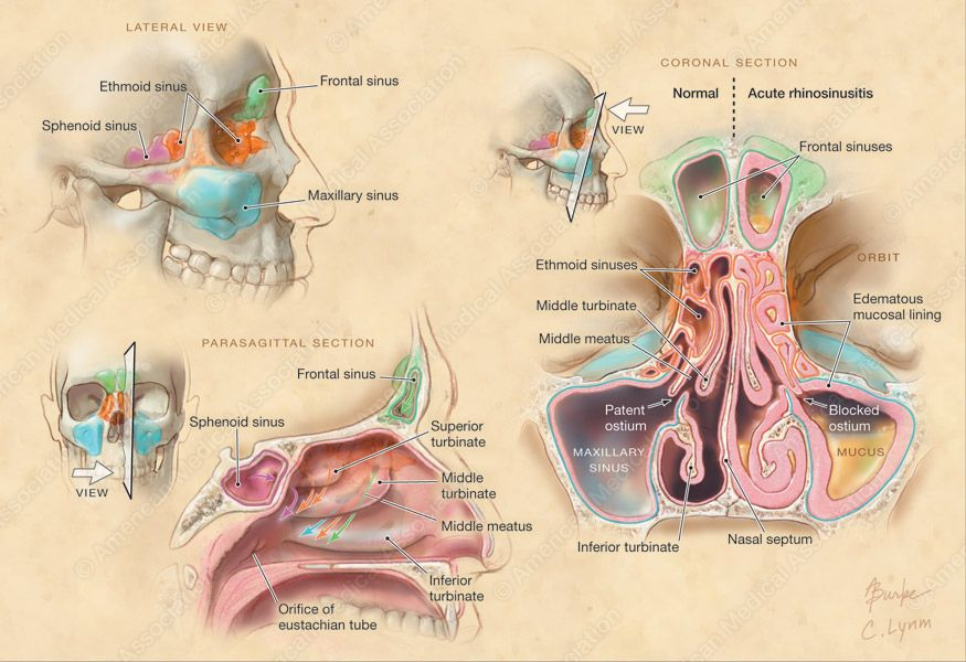 Alison Burke Anatomy of Paranasal Sinuses and Nasal Passages ...