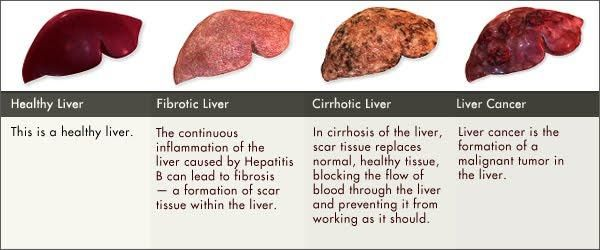 Image result for hepatitis b cure