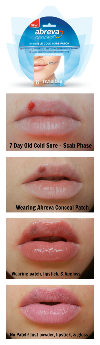 How long will a cold sore last with abreva