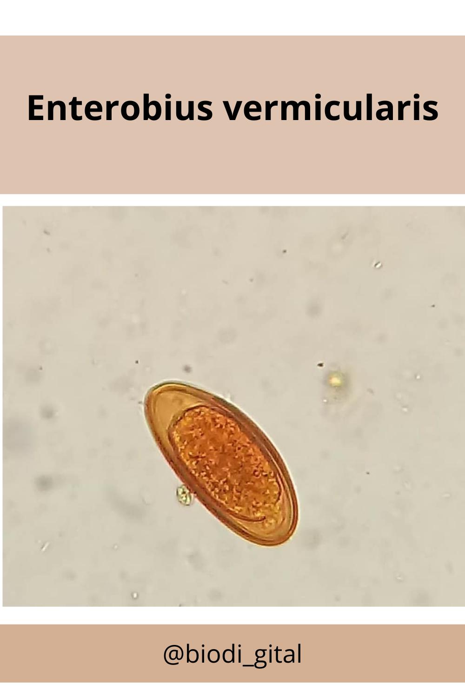 enterobius vermicularis ovo helmint ouă de canalizare
