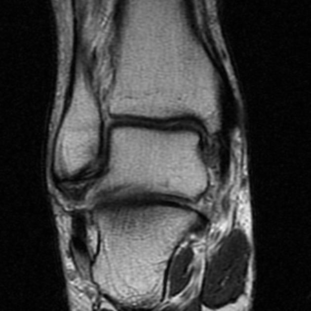 MRI of the foot radiopedia | Medical | Pinterest