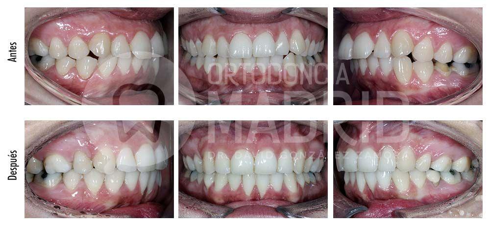 agenesia en clínicas dentales