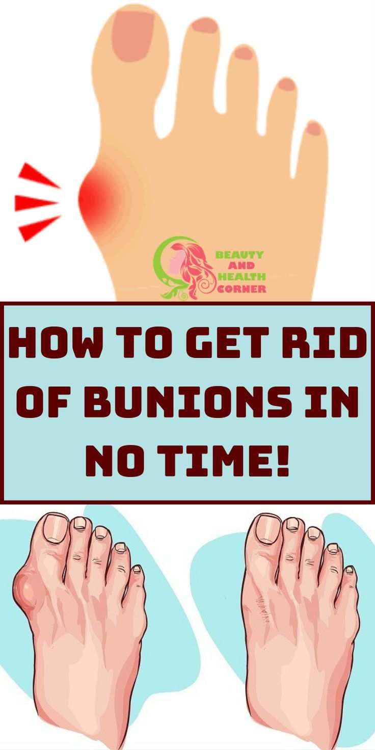 How to get rid of bunions in no time in 2020 get rid of
