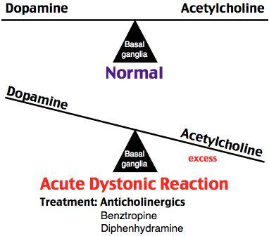 nortriptyline cost