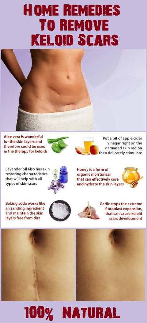 Pin On Natural Remedies