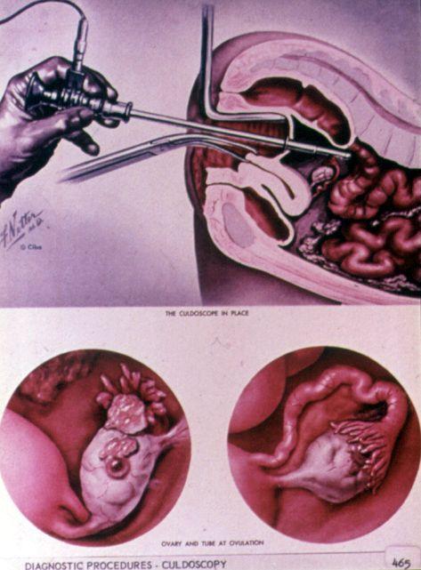 culdoscopy